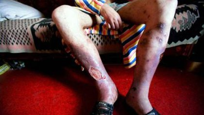 El uso de krokodile provoca severas heridas en la piel de los consumidores (Foto: Archivo)
